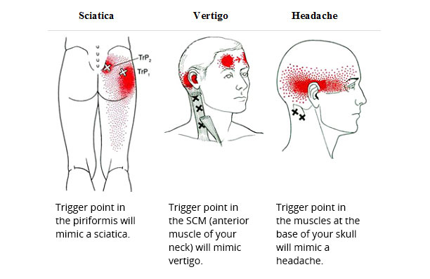 Valuable piece facial trigger point share your